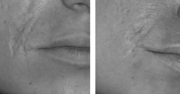 Hautbildverbesserung in Essen